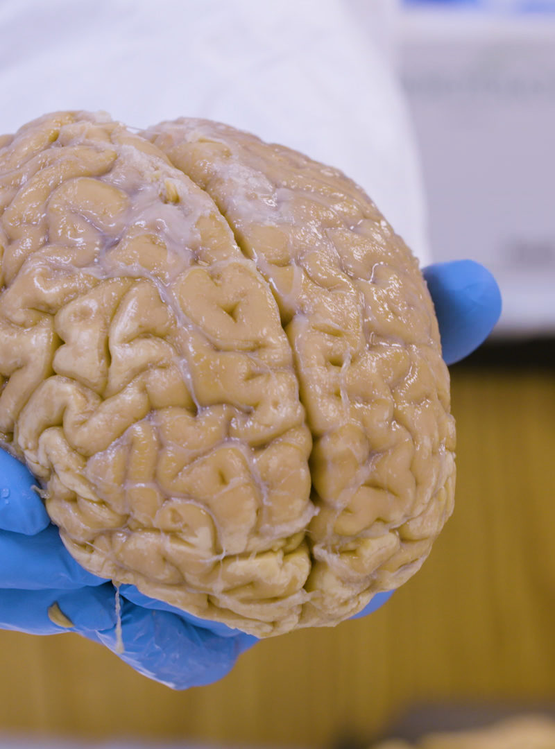 The Largest Brain Bank